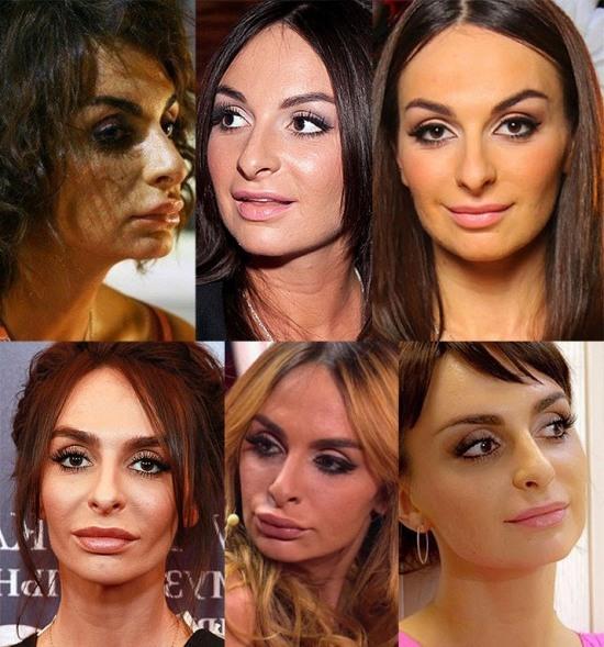 изменения на лице