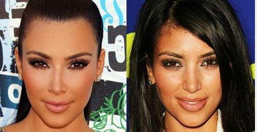до и после пластики