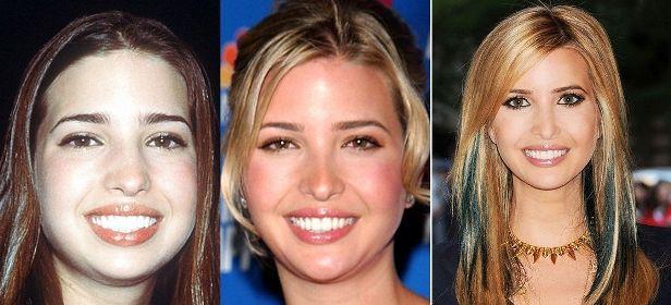 как менялось лицо